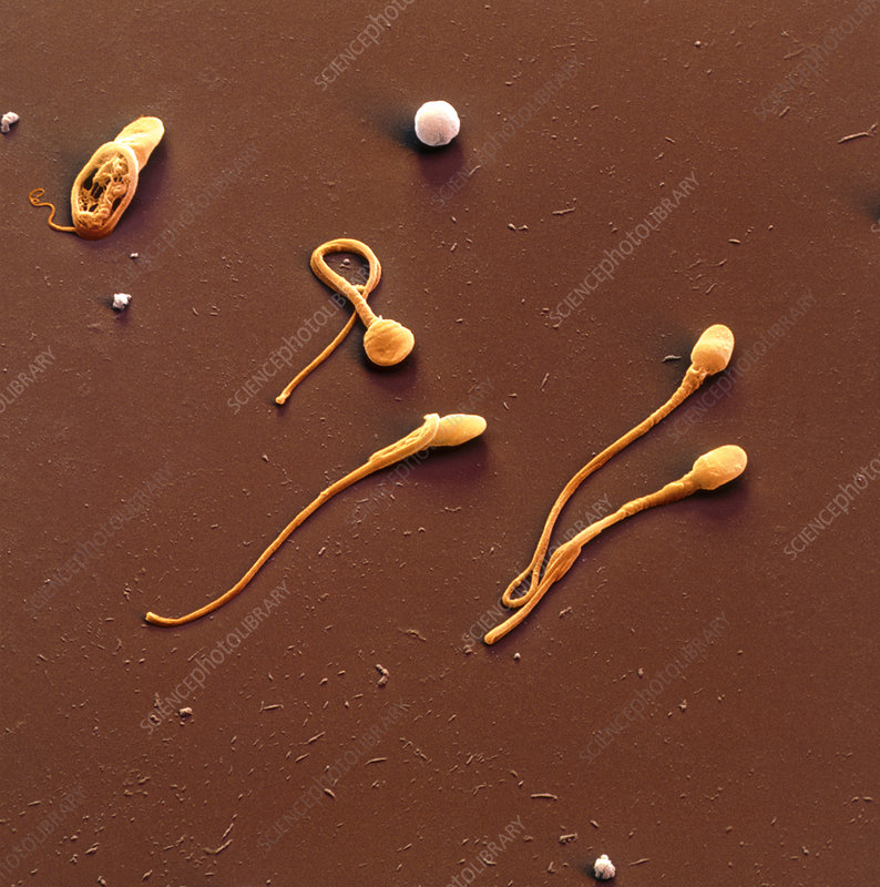 Coloured SEM of human sperm cells