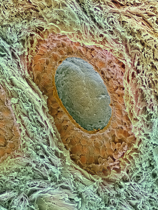 Ovarian follicle, SEM