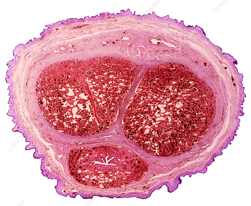 Penis section, light micrograph