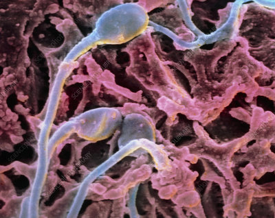 Coloured SEM of sperm on egg during fertilisation