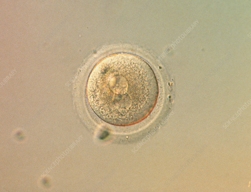 LM of human zygote during in-vitro fertilisation