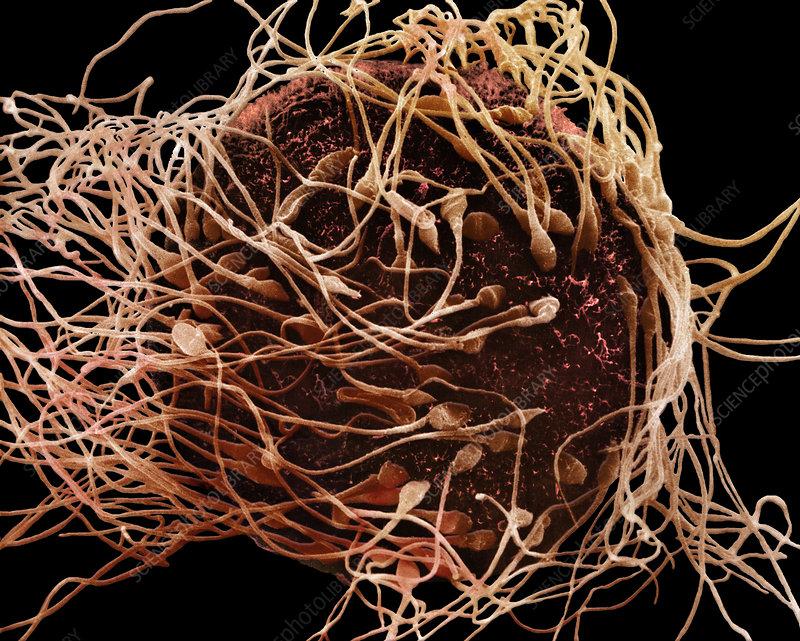 Human Spermatozoa Fertilizing an Egg