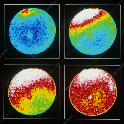 Confocal LM of urchin egg fertilisation: Ca wave