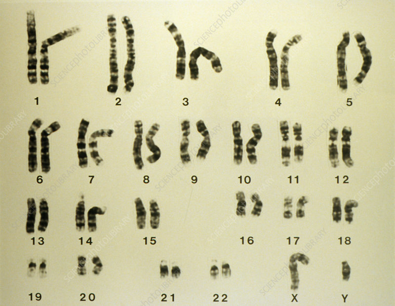 LM of a set of normal male chromosomes