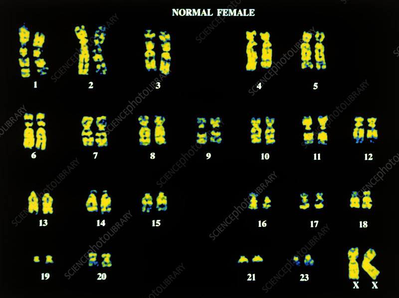 Coloured LM of chromosomes of normal human female