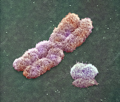 Male sex chromosomes, SEM