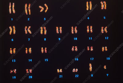 Normal male chromosomes