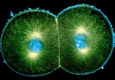 Immunofluorescent micrograph of sea urchin mitosis