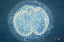 LM of human embryo at two-cell stage