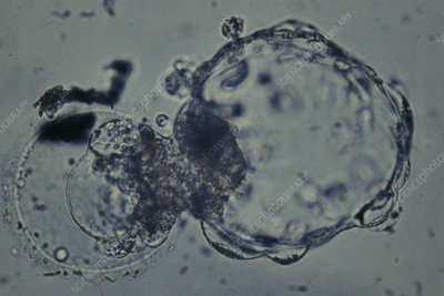 LM of hatching blastocyst in IVF