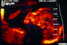 Colour ultrasound of foetal face at 5 months old