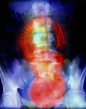 Coloured X-ray of full term foetus