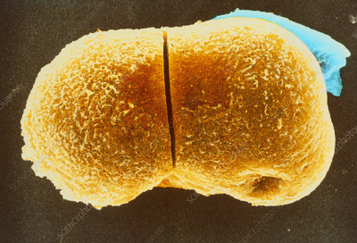 Coloured SEM of blastomeres of a two-cell embryo