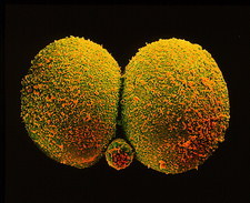 Coloured SEM of human embryo at the 2-cell stage