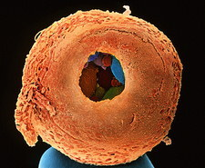 Coloured SEM of 8-cell human embryo drilled open