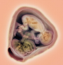 32 week twin foetuses, MRI scan