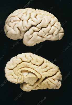 Neonatal brains