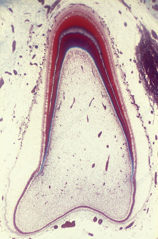 Unerupted foetal tooth, light micrograph