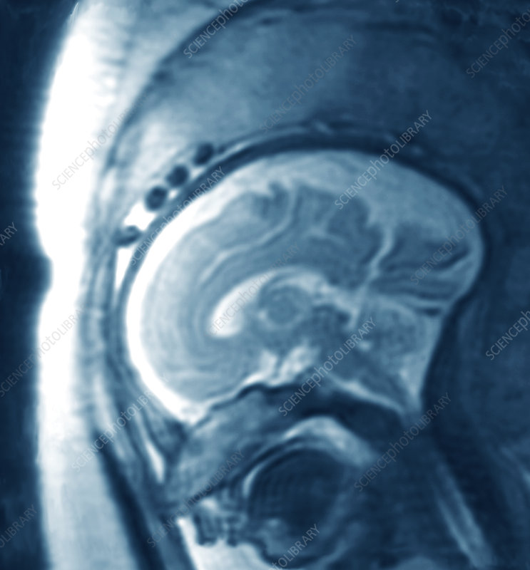 25 week foetus' brain, MRI scan