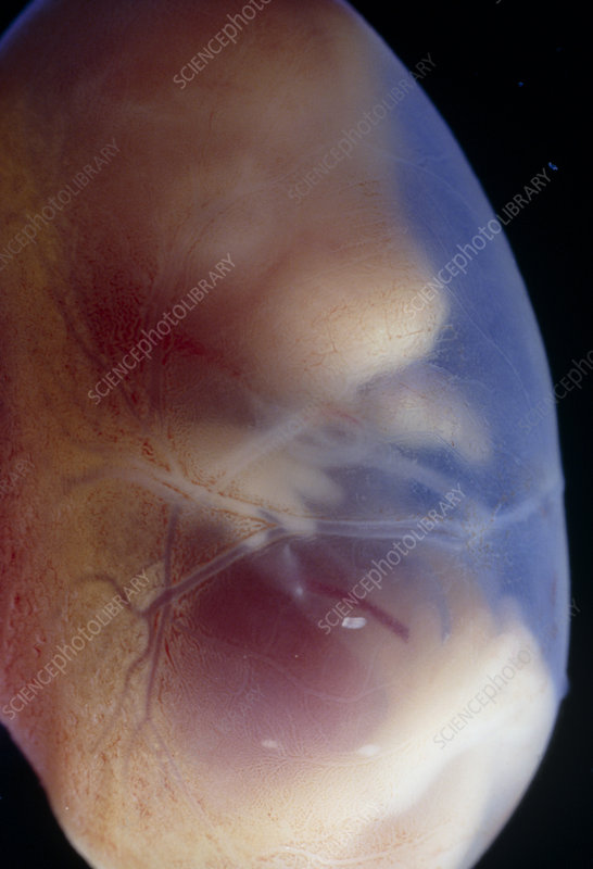 View of a 15.5 day old foetus of a rat