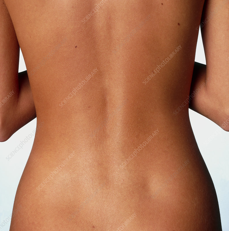 Woman's back: posterior view of the torso