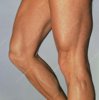 Muscular legs of athletic young man