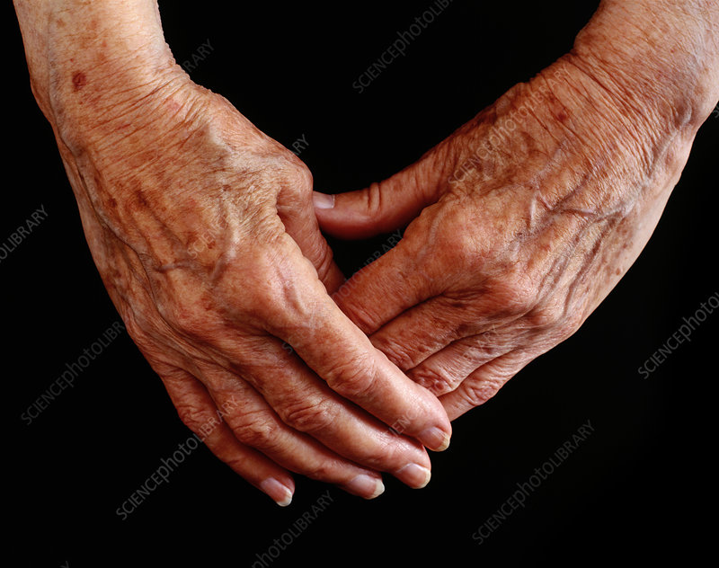 Elderly woman's hands clasped together