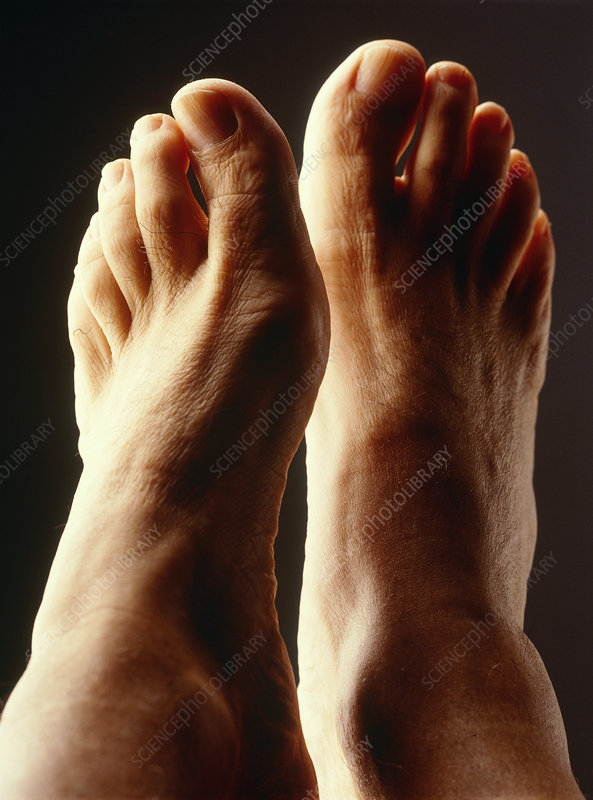 Top view of a man's healthy feet