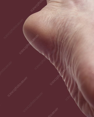 Sole of a foot