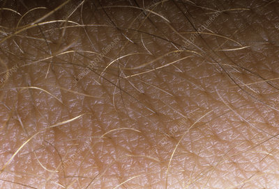 Macrophotograph of skin surface of back of a hand