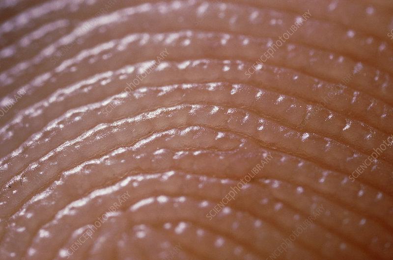 is there an ideal fingerprint - Page 2 P710169-Fingerprint_skin_ridges-SPL