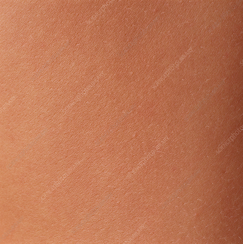 Close-up of skin on the body of a woman