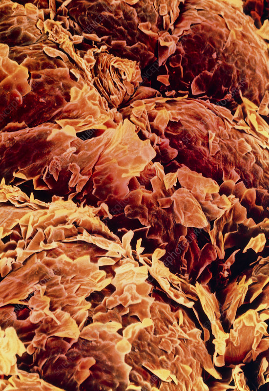 Coloured SEM of the surface of human skin