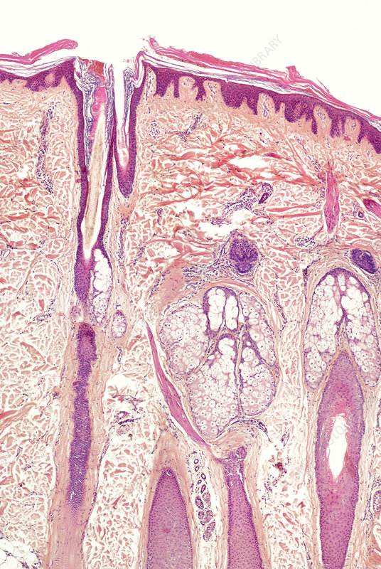 Human skin section, light micrograph