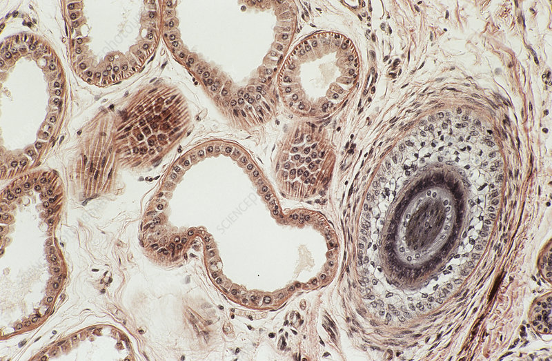 Underarm sweat glands, light micrograph - Stock Image P710/0478 ...