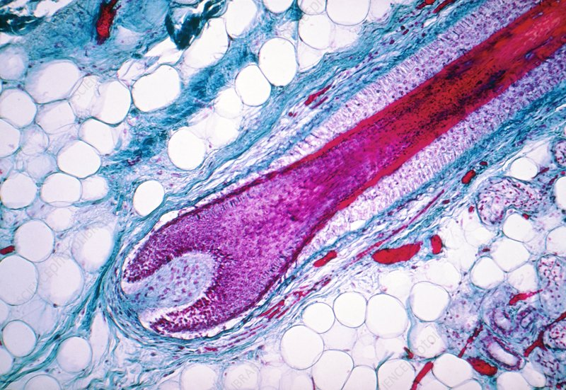 LM of human scalp showing single hair follicle