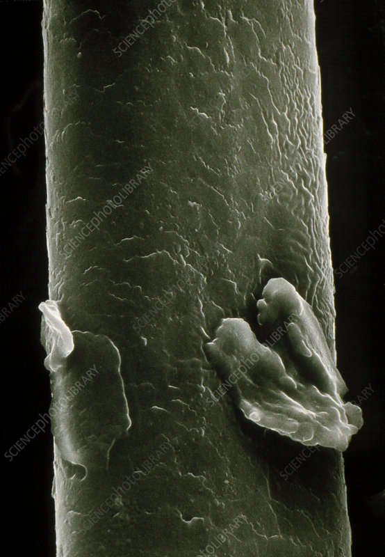 SEM of human hair showing dandruff