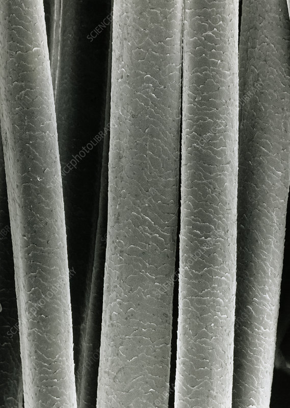 SEM of human hair after washing in shampoo