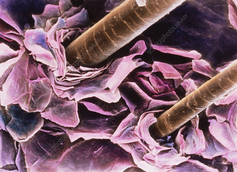 SEM of hair on scalp - Stock Image P720/0147 - Science Photo Library