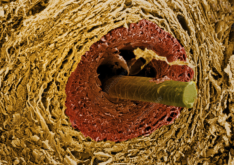 Coloured SEM of a section through a hair follicle