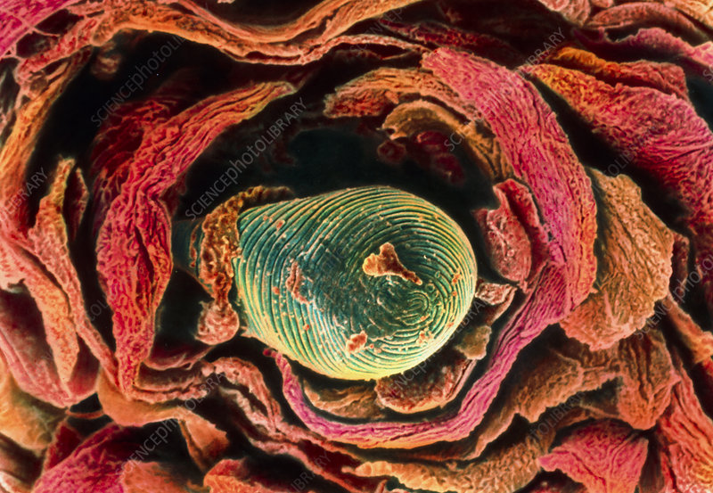 Coloured SEM of hair emerging from the skin