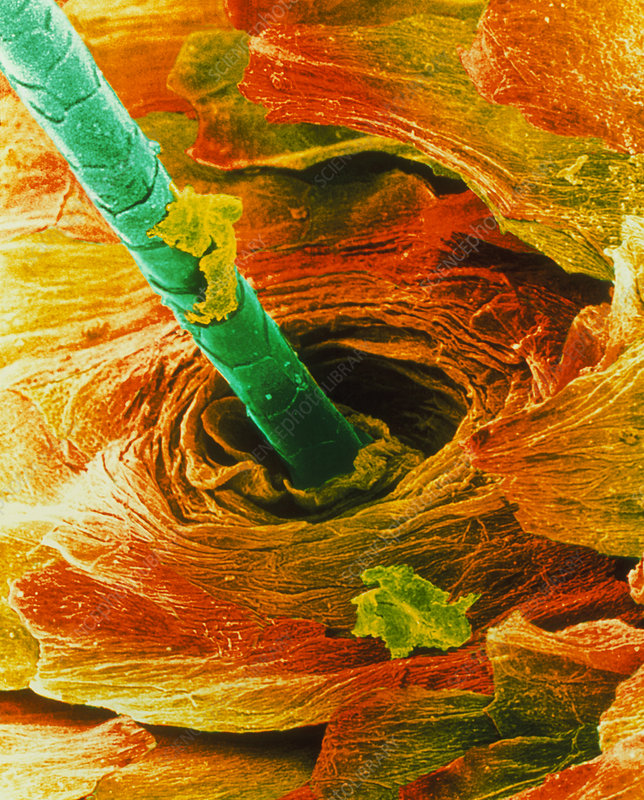 Coloured SEM of a hair emerging from the skin