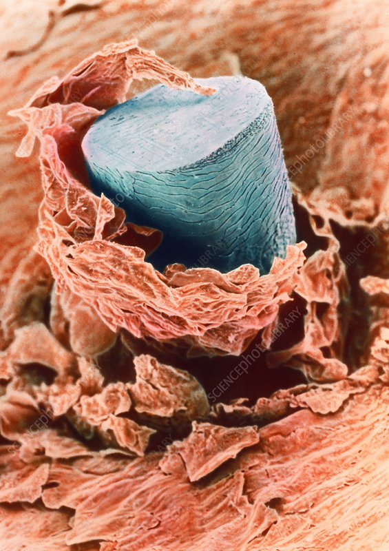 Coloured SEM of a shaved hair in the skin