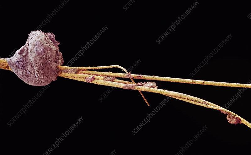 Blackhead, SEM - Stock Image P720/0271 - Science Photo Library