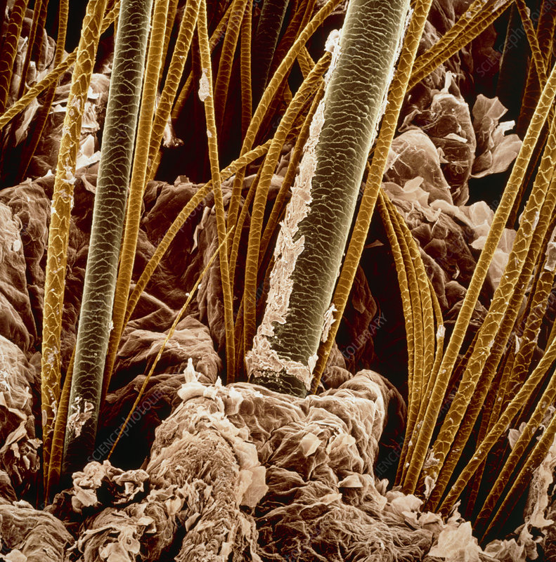 false-col SEM of skin and hair of a dog