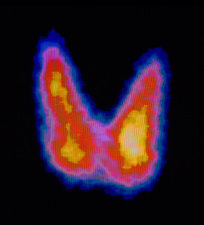 Coloured gamma scan of normal human thyroid gland