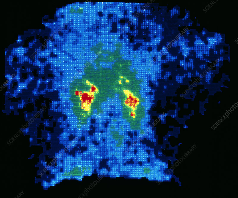 Gamma scan of normal human thyroid gland