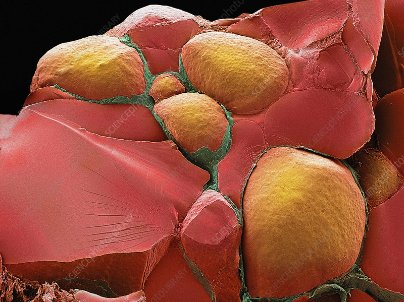 Thyroid gland, SEM
