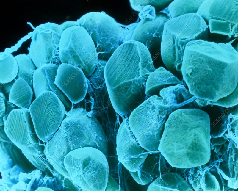 Coloured SEM of adipose tissue showing fat cells