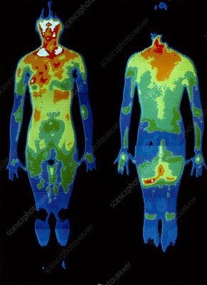 Thermogram: naked woman standing